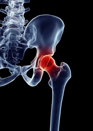 Hip replacement melbourne